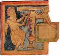 HEMROIDS - An 11th century picture of a hemroid operation