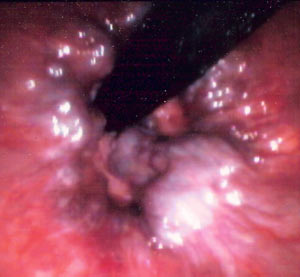 Internal hemorrhoids as found under a sigmoidoscope examination