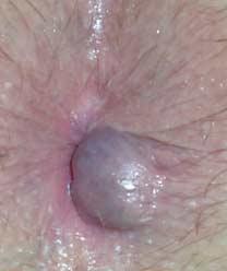 Photo of an external hemroid / hemorrhoid