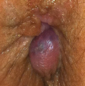 A very large thrombosed external hemorrhoid that has been treated with hydrocortisone cream