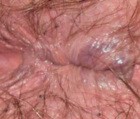 Herpes and anus and hemorrhoids