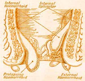 This picture / diagram of hemroids, shows what external, internal and prolapsed internal hemorrhoids are.