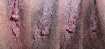 Before using Neohealar on his hemroids - How the Hemorrhoids looked after two weeks of using NeoHealar - These external hemorrhoids have now had NeoHealar Hemorrhoid cream applied for 3 weeks - This is how the hemorrhoids look after using NeoHealar for 5 weeks