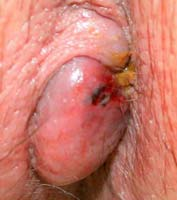 external bleeding hemroids