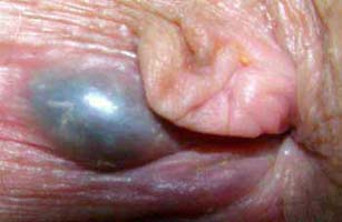 External thrombosed hemorrhoid, skin tag on the right.